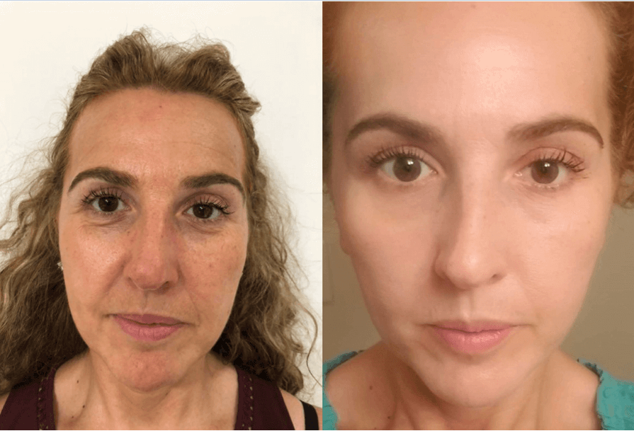 Discovering the Fountain of Youth – Delia Medeiros